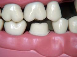 soluciones para dientes faltantes
